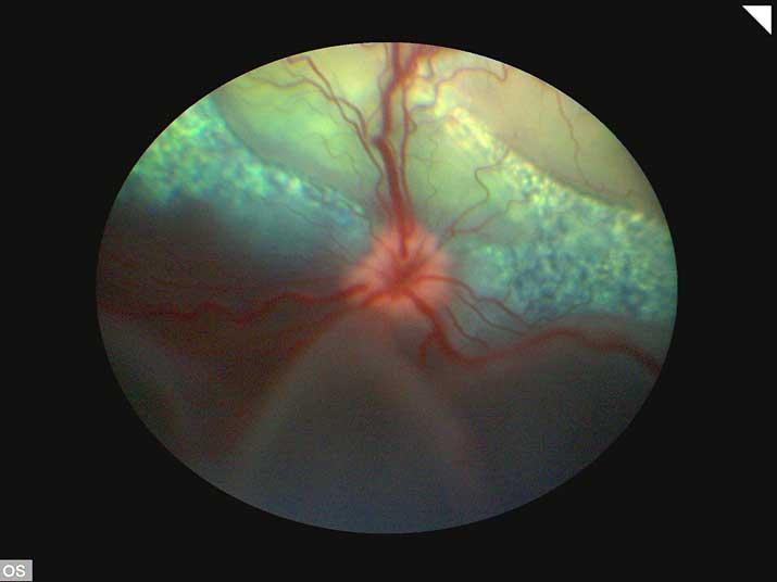 Desprendimiento de retina de un perro