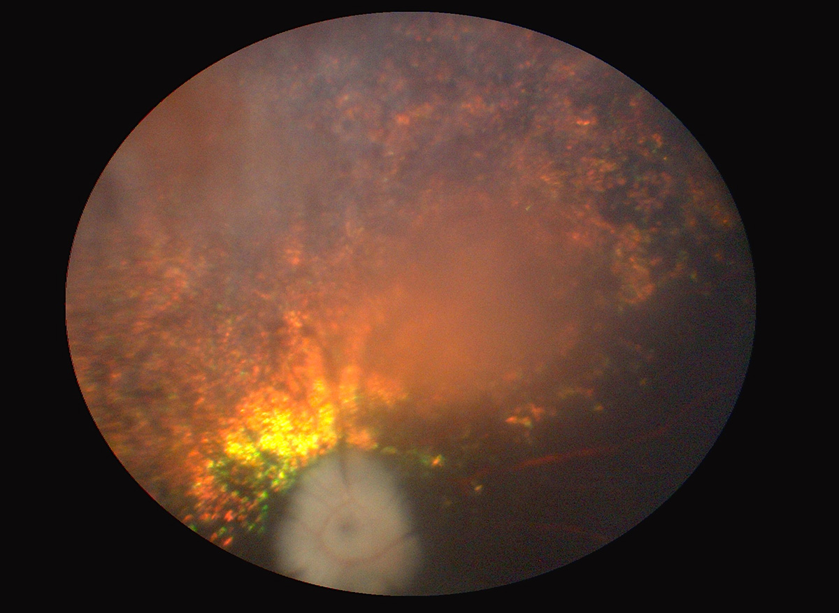 atrofia-progresiva-retina-2