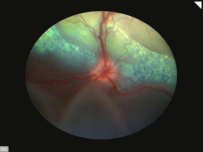 Desprendimiento de retina exudativo perro