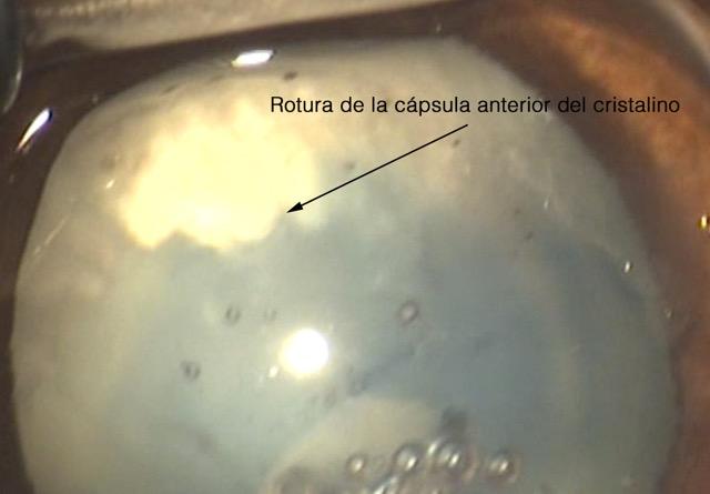 Rotura capsula cristalino