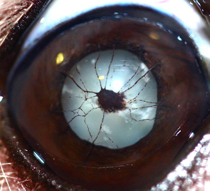 Membrana pupilar persistente