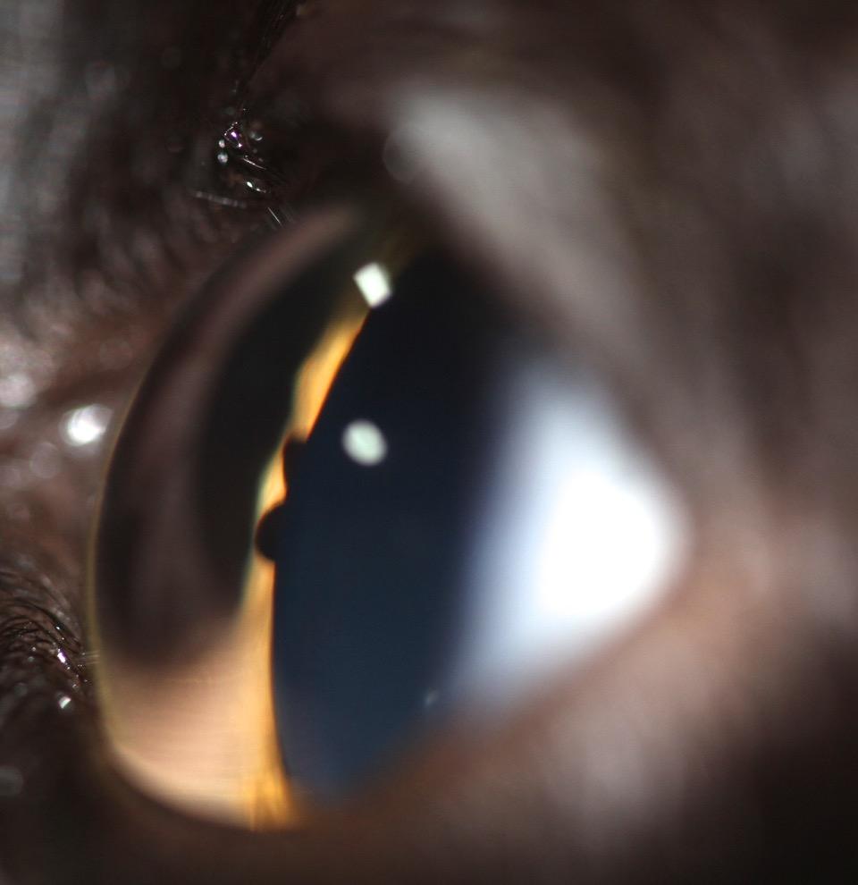 Masa uveal quiste de iris en un gato
