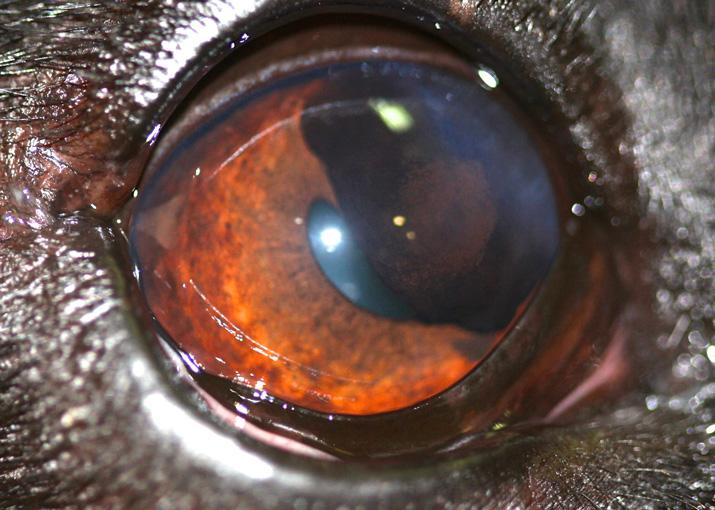 Tumor ocular benigno afecta iris