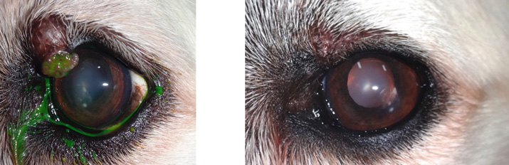 Cirugia tumor palpebral antes y despues