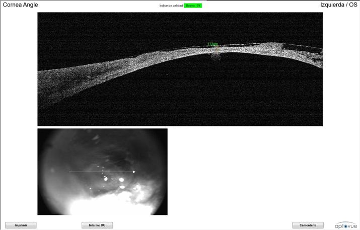 Tomografía coherencia óptica OCT gato úlcera