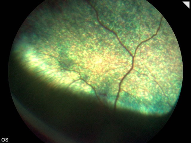 Retinografía post quirúrgica- caso vitrectomía