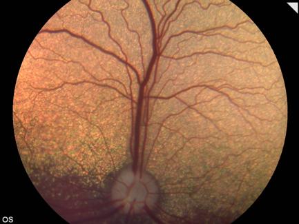 Retinografía ocular perro