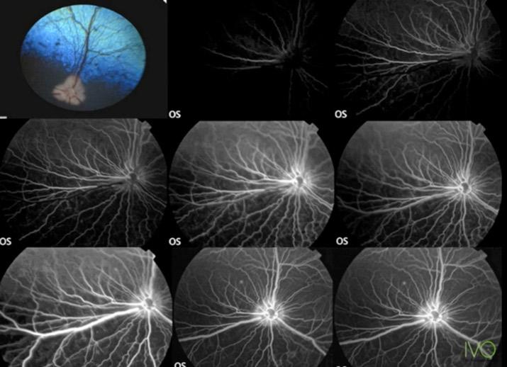 Angiografía fluoresceínica. Foto: IVO