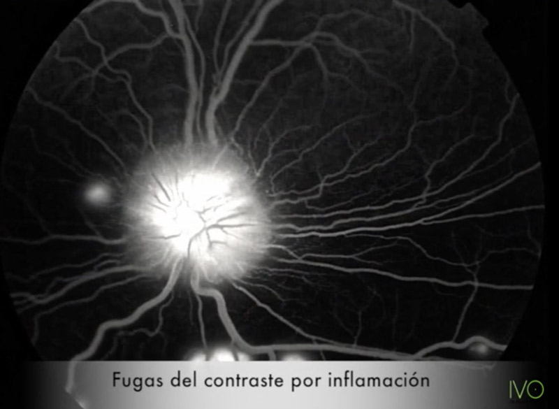 Angiografía fluoresceínica