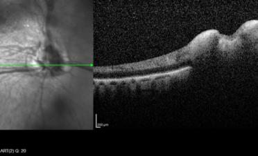 OCT del nervio óptico