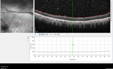 OCT Tomografia Coherencia Óptica - Retina normal