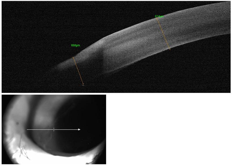 Tomografía de coherencia óptica OCT de un águila americana