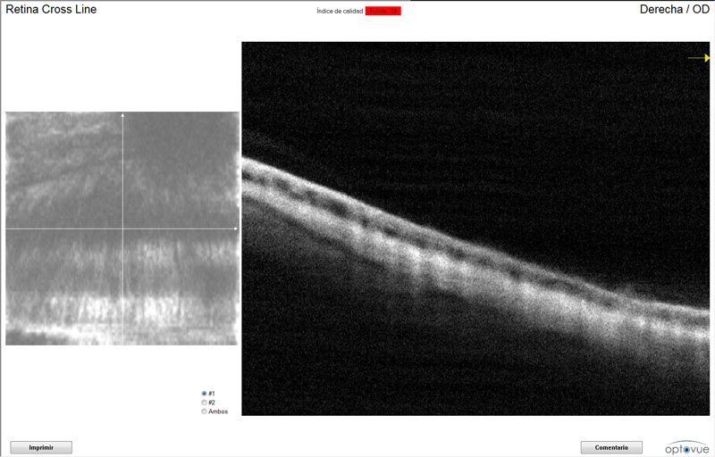 OCT Retina glaucoma Riky