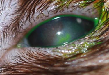 Ojo de hurón con queratitis fúngica