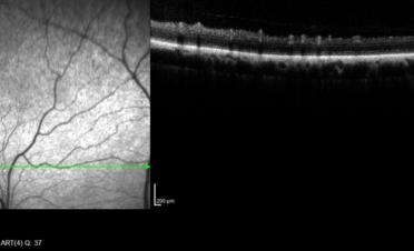 OCT de retina en perro - Caso luxacion cristalino Rio