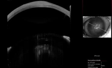 Tomografía de coherencia óptica (OCT) de gato con úlcera colagenasa