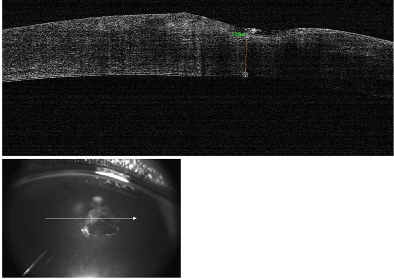 OCT perro distrofia lipidica corneal - Caso Apolo