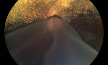 Retinografia perro con desprendimento de retina - Caso Fox