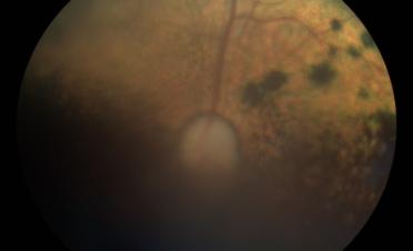 Retinografia perro post vitrectomia por desprendimento de retina - Caso Fox