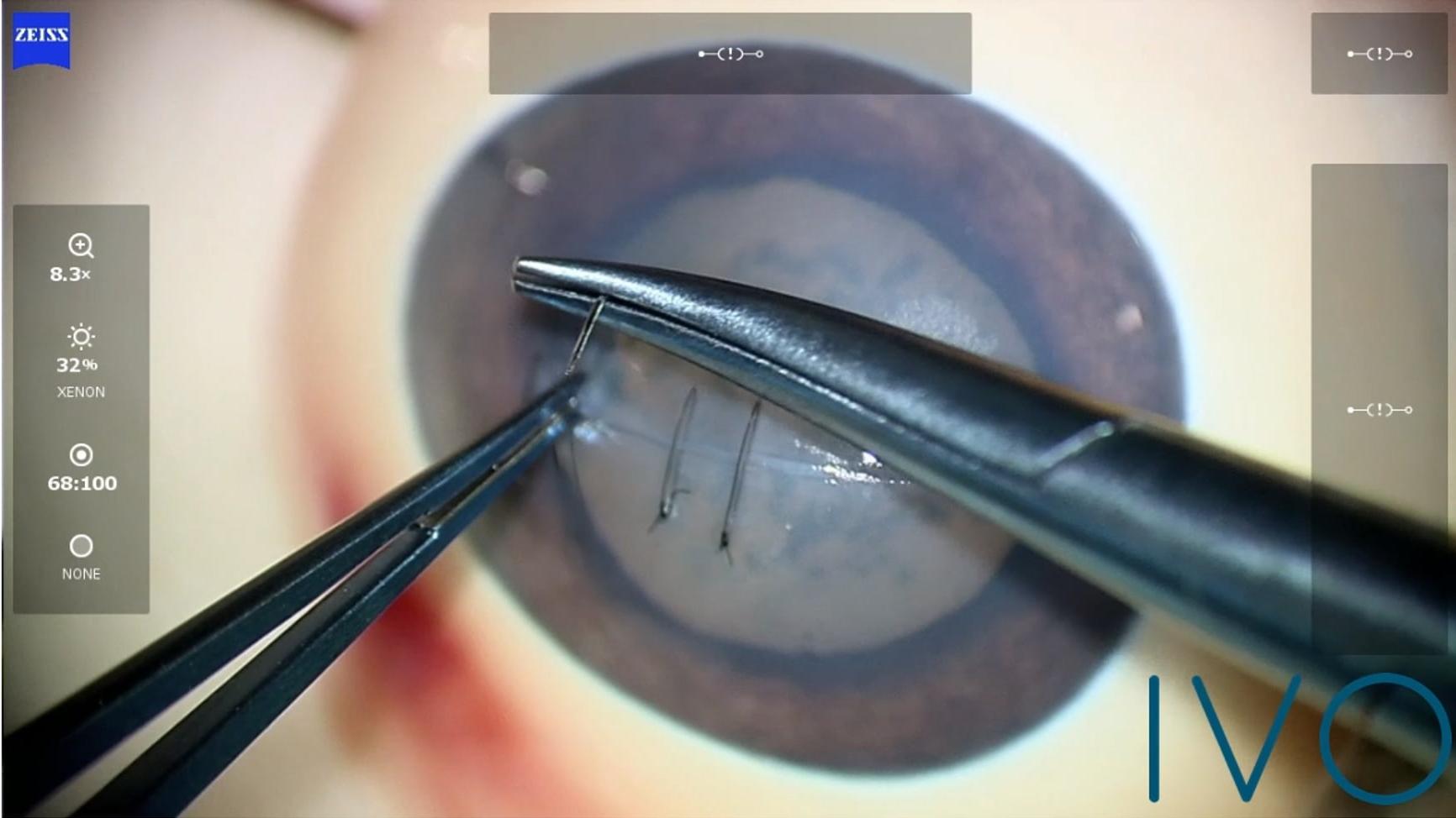 Curso de cirugía de la córnea
