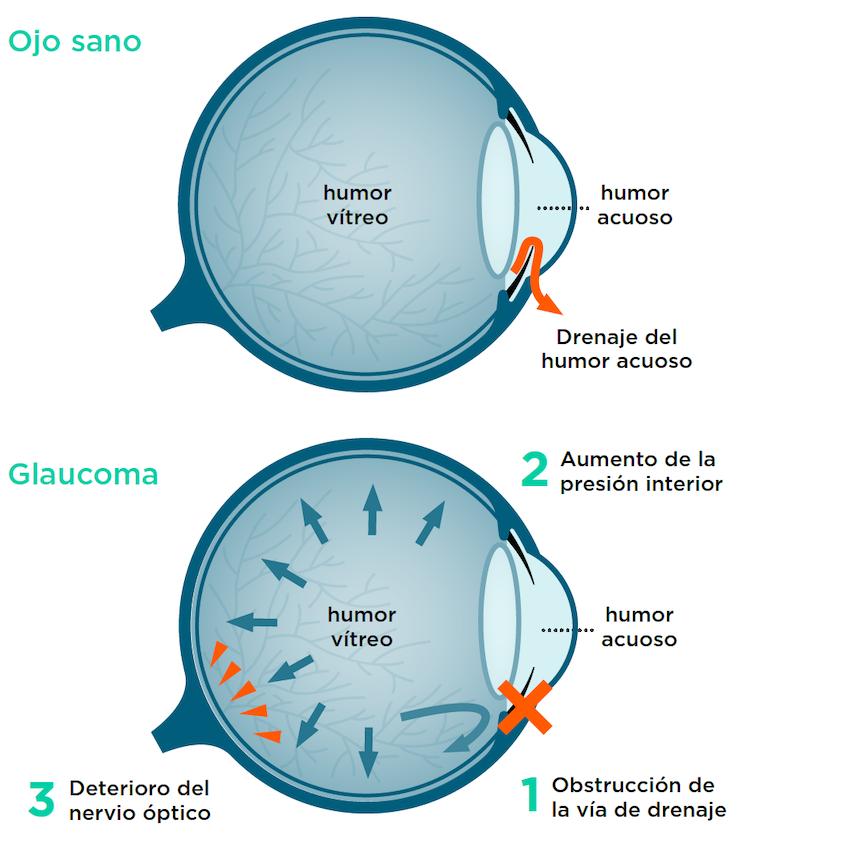Ojo con glaucoma: problemas de drenaje del humor acuoso