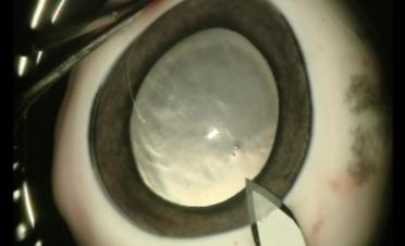 Cirugia de catarata extraccion extracapsular