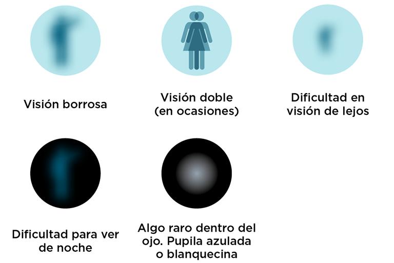 Síntomas de cataratas en fases iniciales