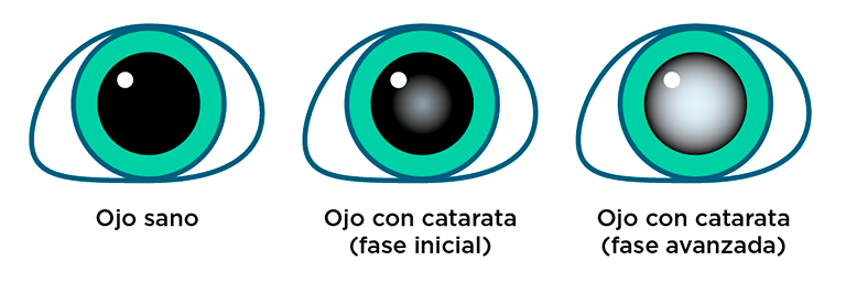 Ojo con cataratas - Fases de desarrollo